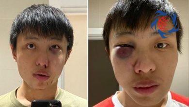 Photo of حمله وحشیانه به جوان سنگاپوری به بهانه کرونا در لندن