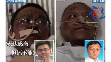 Photo of پوست ۲ پزشک مبتلا به کرونا سیاه شد
